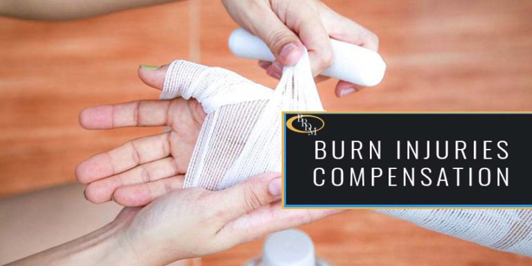Burn Injuries- How You Could Get Compensated